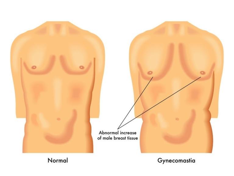 Gynecomastia: Early Warning Signs