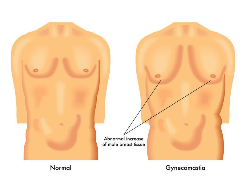 Gynecomastia - gyno on cycle what to do - puffy nipples on test cycle