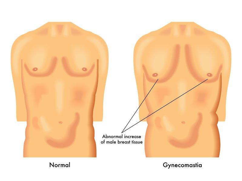 Gynecomastia: Early Warning Signs ~ Anabolicco