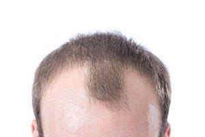 Steroid Hair Loss