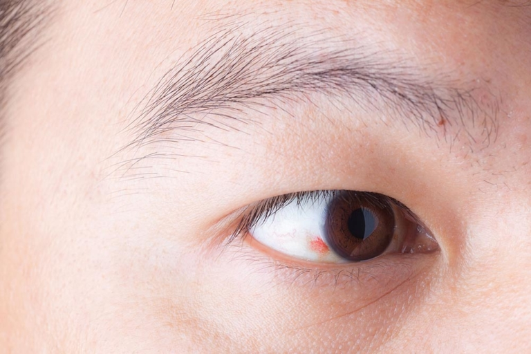 Causes of and Treatments for Broken Blood Vessels in the Eye