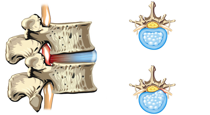 What does a herniated disc feel like