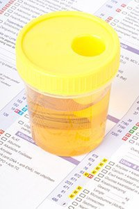 Anabolic Steroid Test - steroid abuse